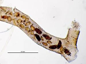 Tracheenmilben (Acarapis woodi) in einer Trachee